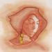 wine stain portraits